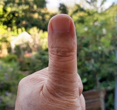A picture of a thumb held at arms length